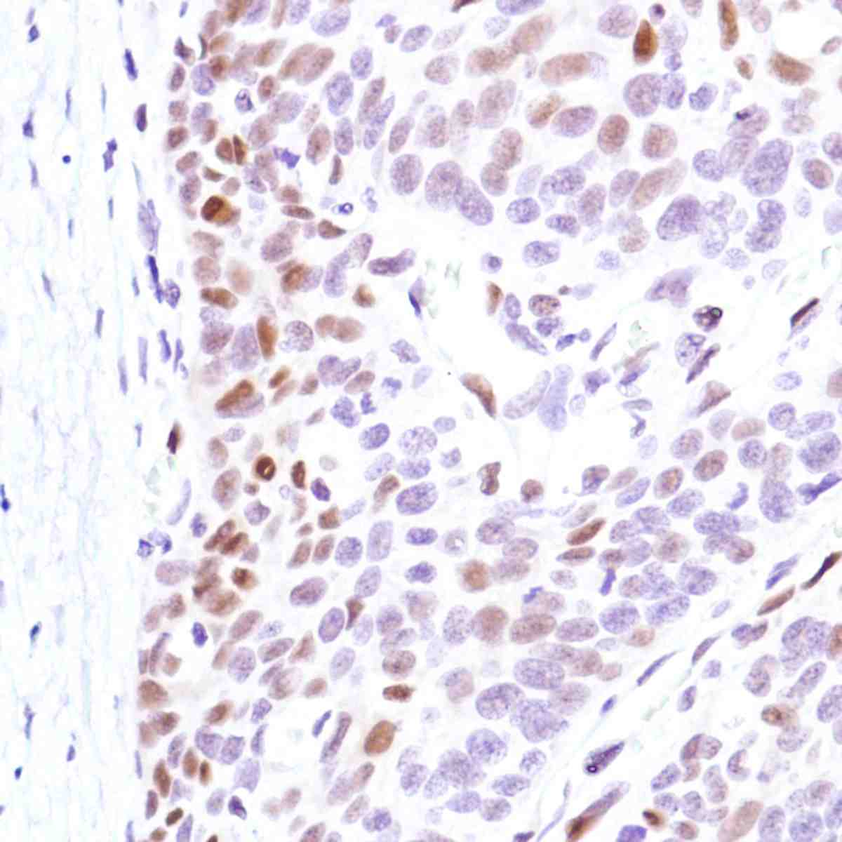 Human Cervical Squamous Cell Carcinoma stained with anti-Cyclin D3 antibody