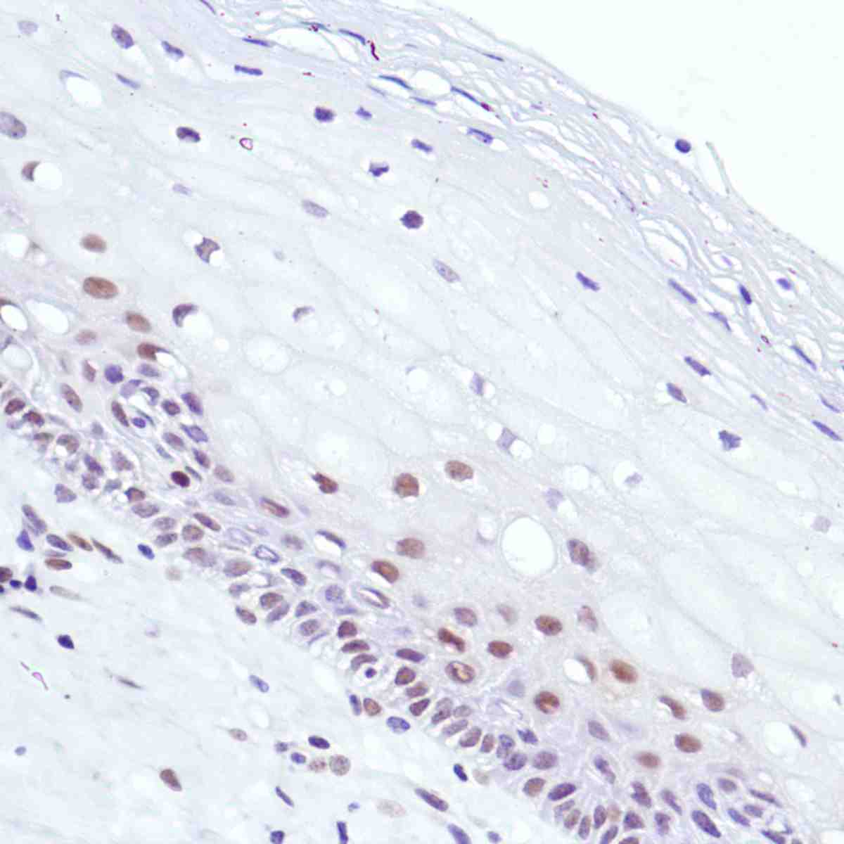 Human Cervix stained with anti-Cyclin D3 antibody