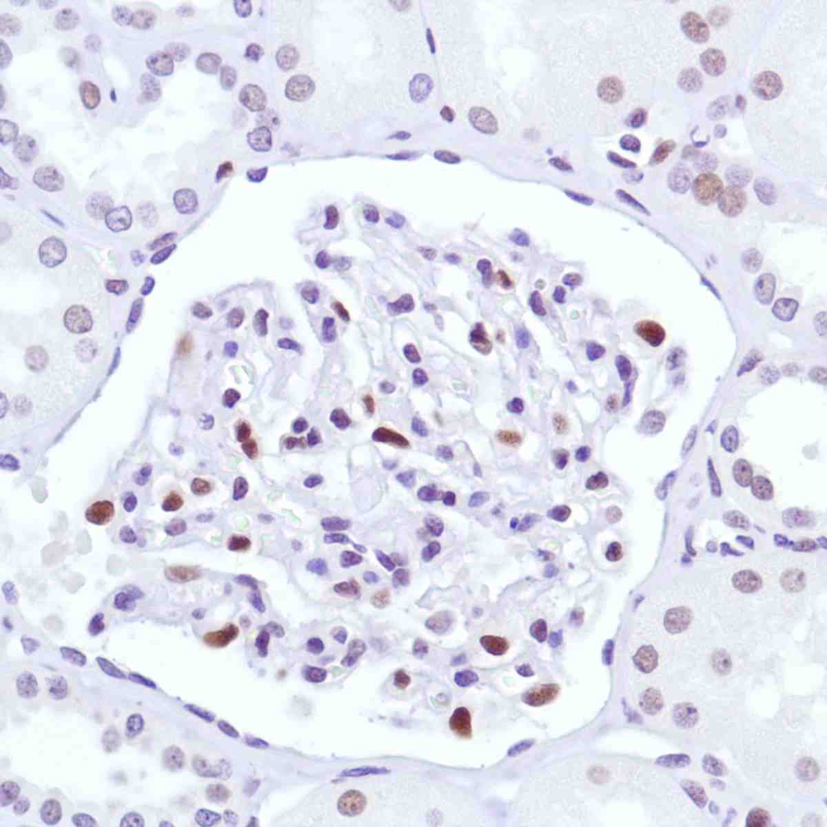 Human Kidney stained with anti-Cyclin D3 antibody