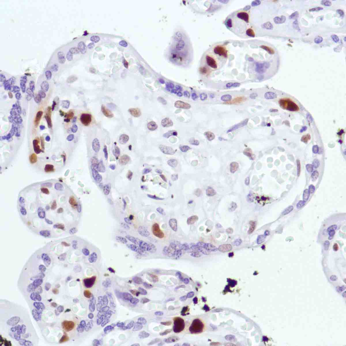 Human Placenta stained with anti-Cyclin D3 antibody