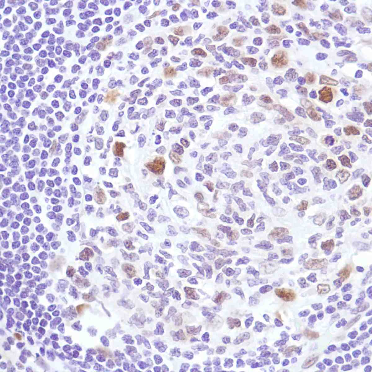 Human Reactive Lymph Node stained with anti-Cyclin D3 antibody