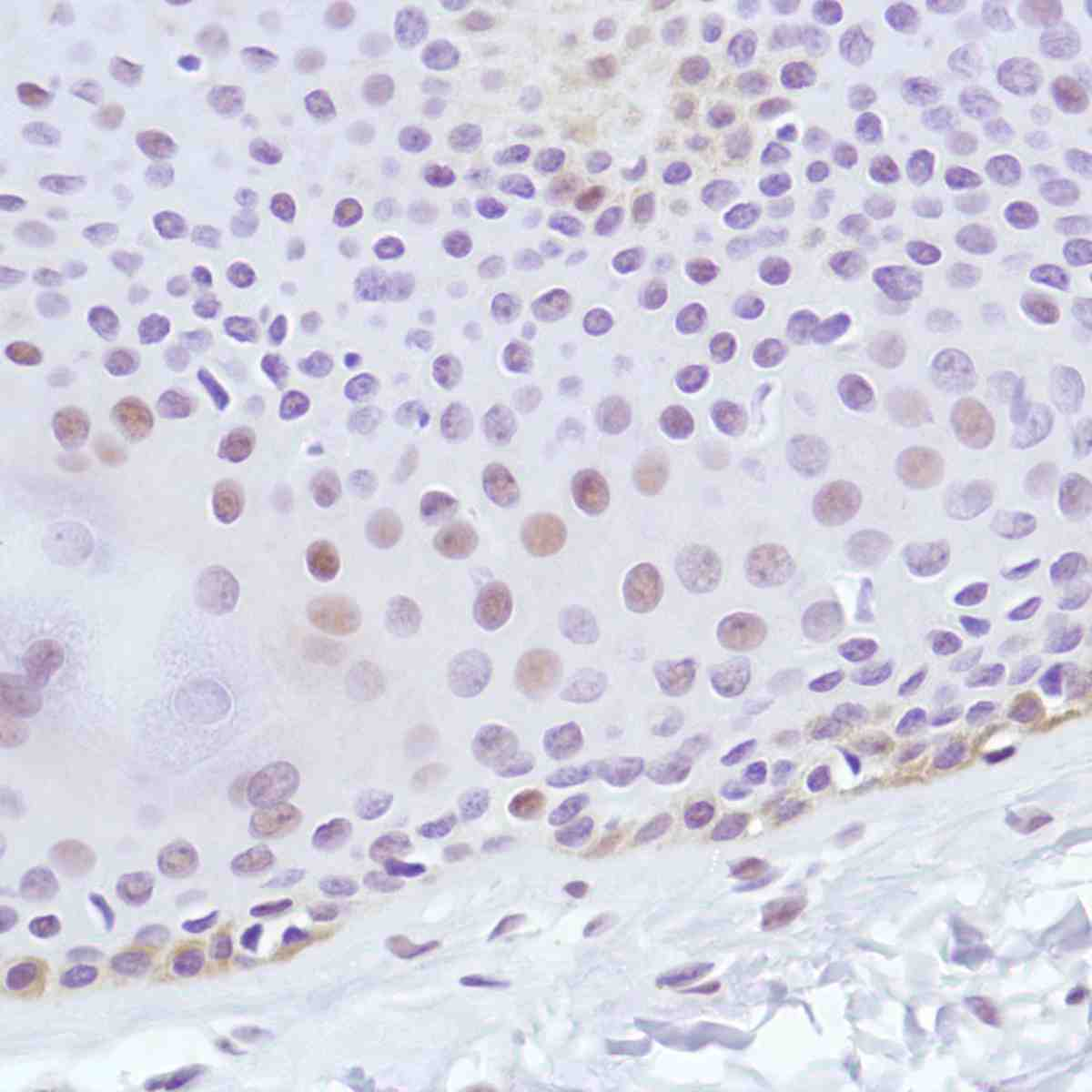 Human Skin stained with anti-Cyclin D3 antibody