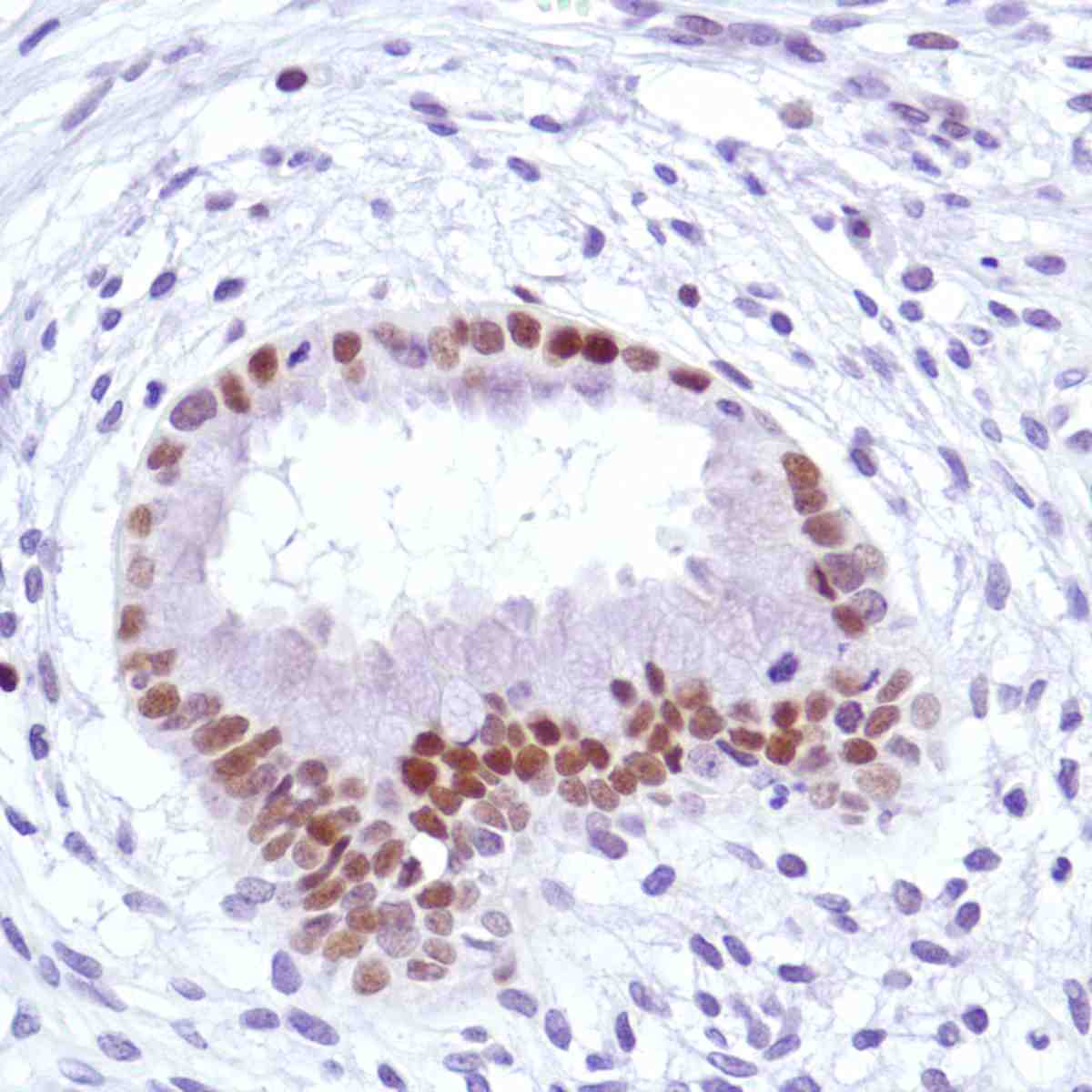 Human Uterus stained with anti-Cyclin D3 antibody