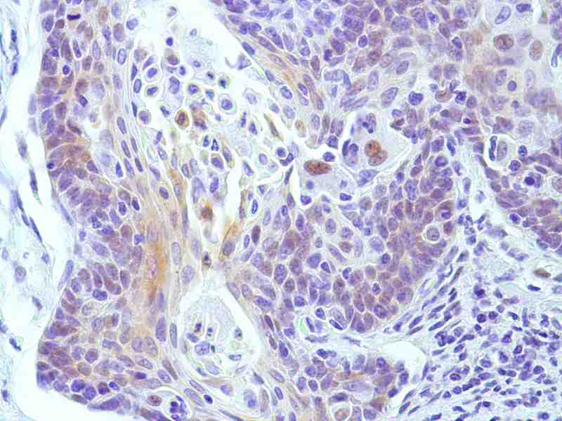 Human Cervical Squamous Cell Carcinoma stained with anti-Cyclin E1 antibody