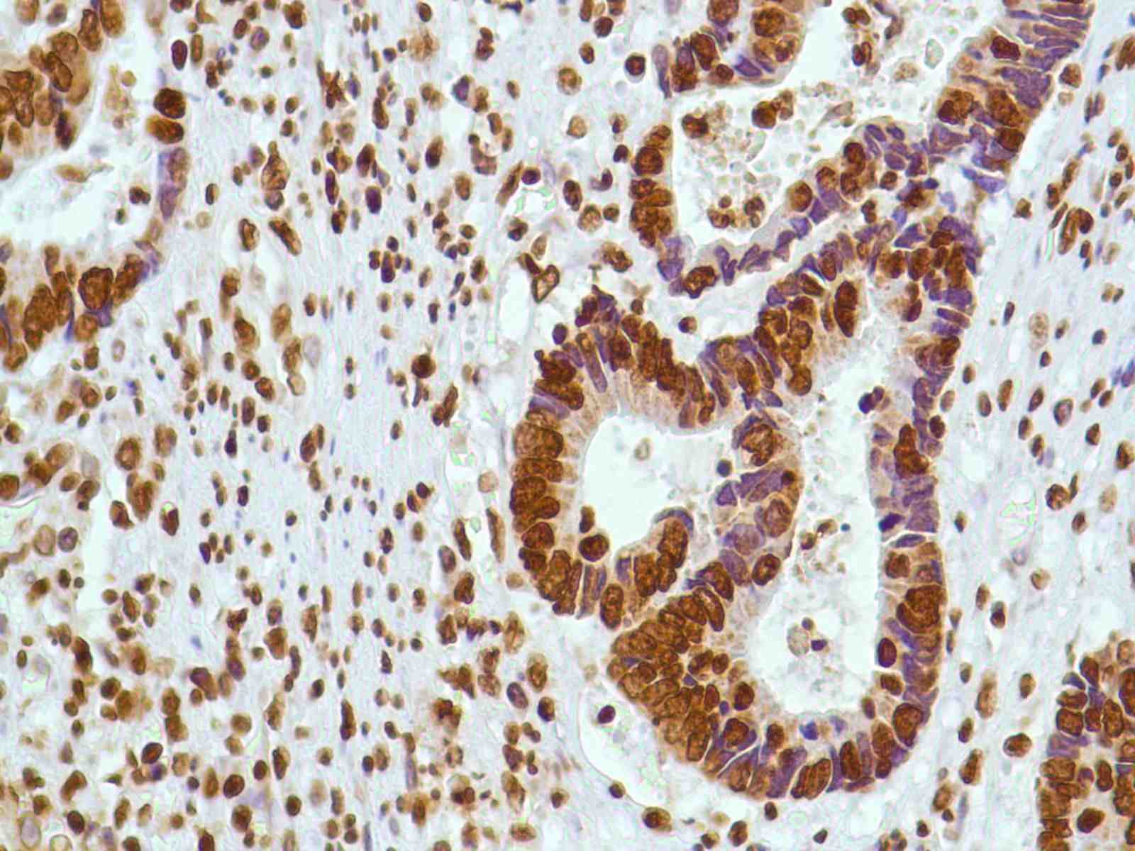 Human Colon Adenocarcinoma stained with anti-ERCC1 antibody