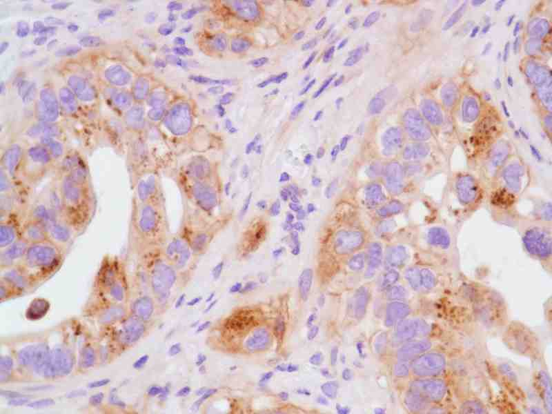 Human ACHN RCC Xenograft stained with anti-FN14 antibody
