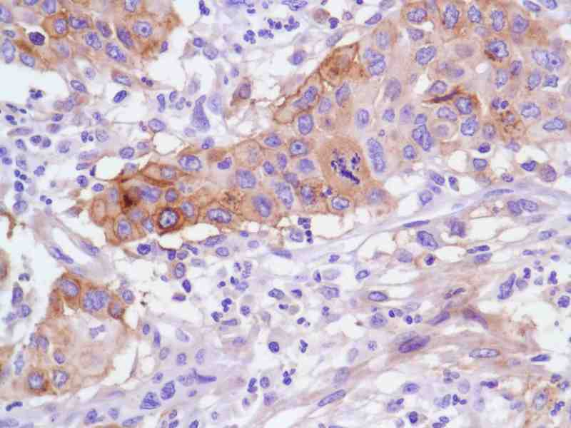 Human Pancreatic Adenocarcinoma Grade III stained with anti-FN14 antibody