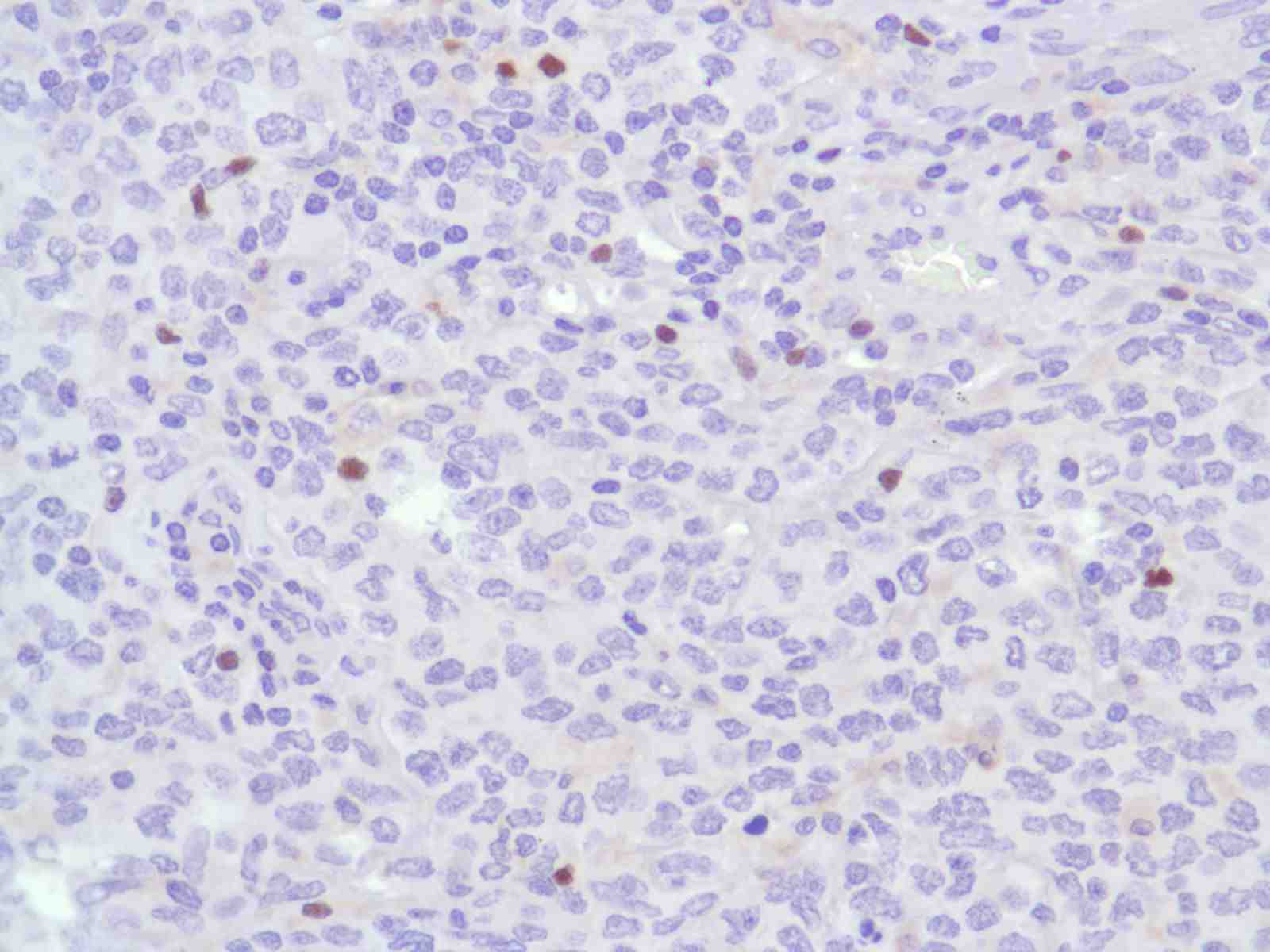 Human B-Cell Lymphoma stained with anti-FoxP3 antibody