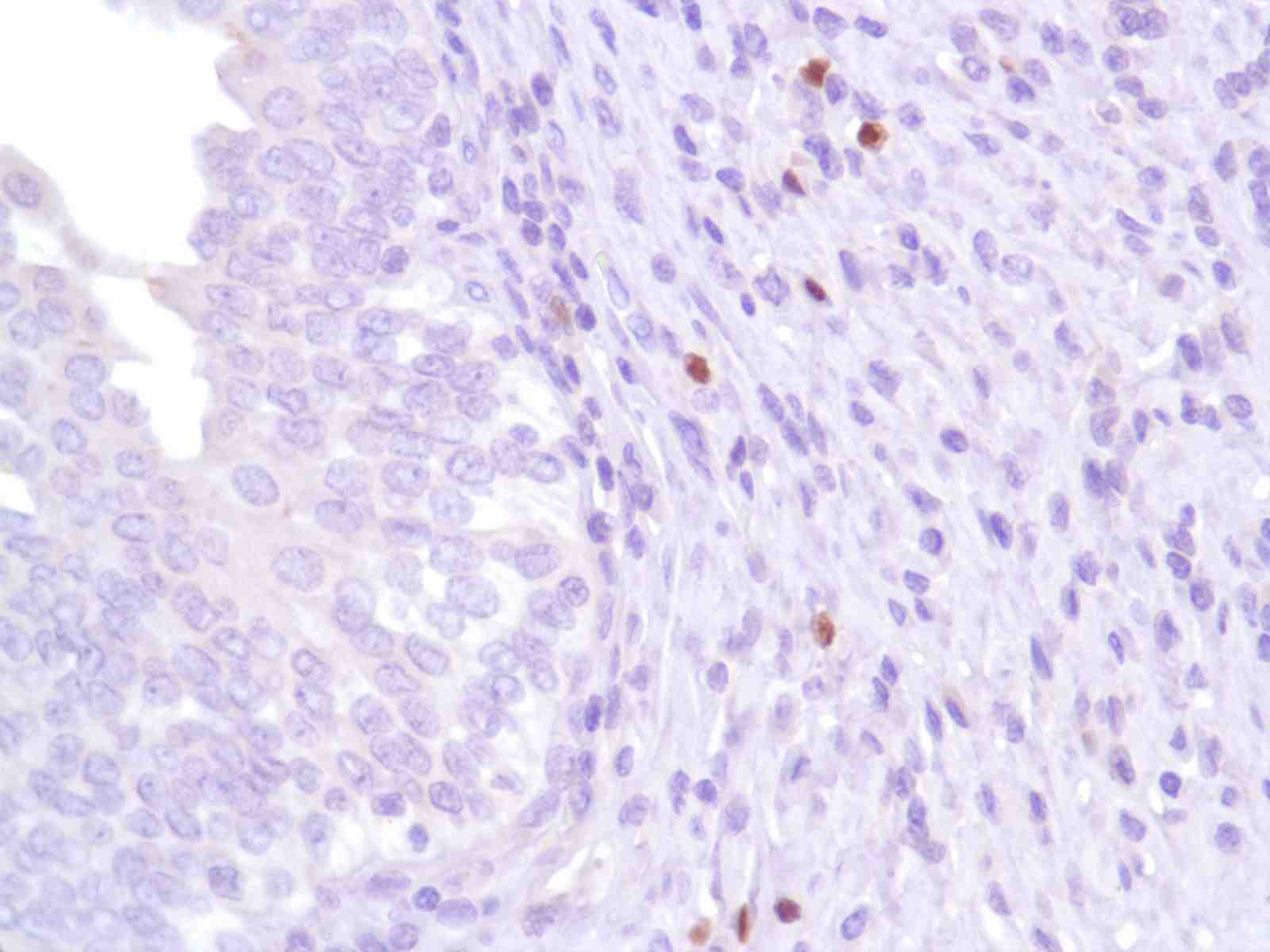 Human Bladder stained with anti-FoxP3 antibody