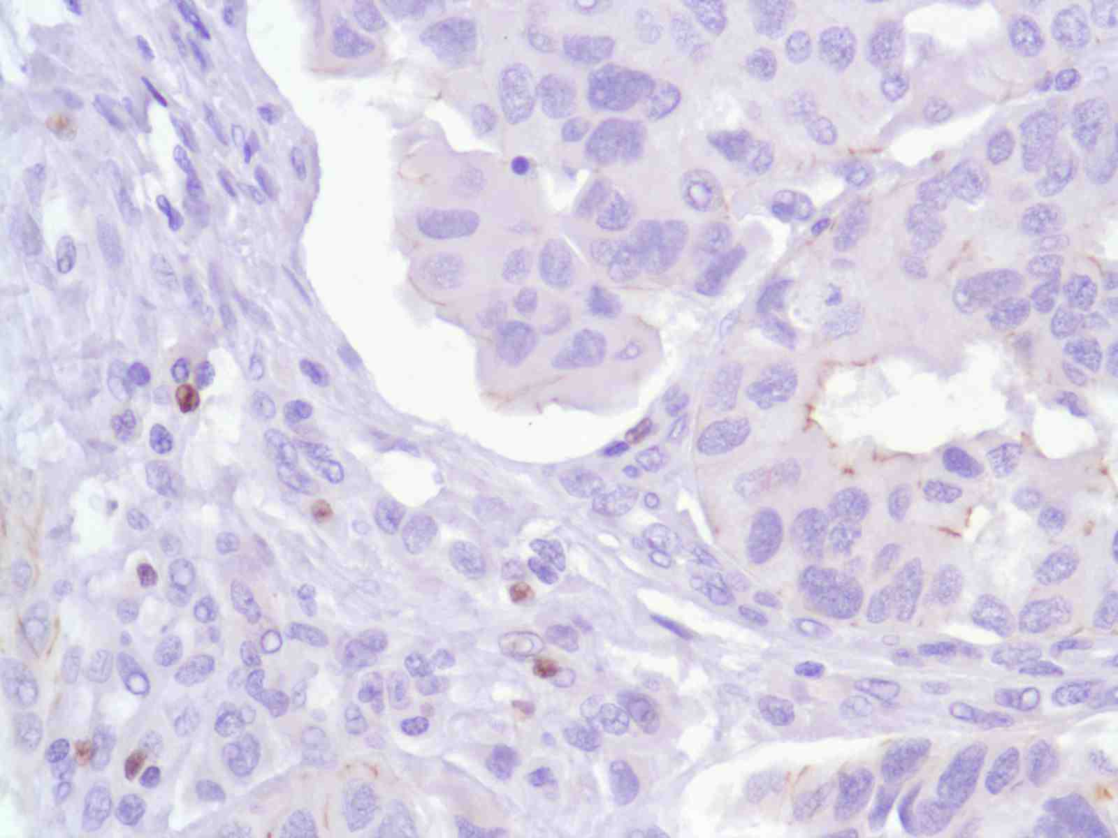 Human Bladder Transitional Cell Carcinoma stained with anti-FoxP3 antibody