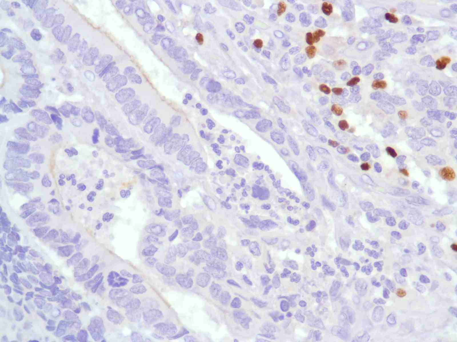 Human Colon Adenocarcinoma stained with anti-FoxP3 antibody