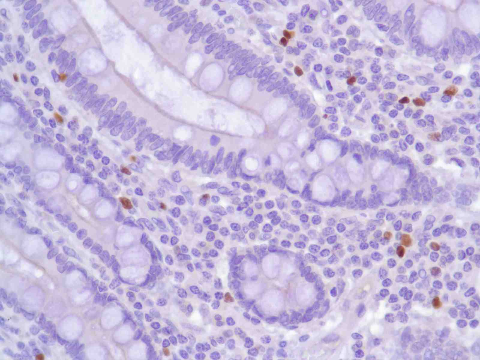 Human Colon stained with anti-FoxP3 antibody