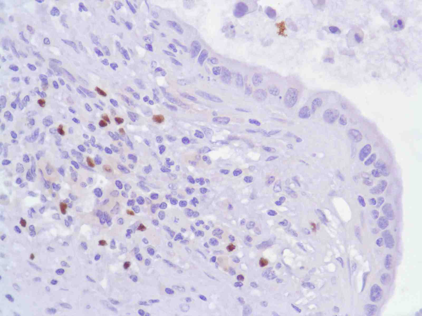 Human Pancreatic Adenocarcinoma stained with anti-FoxP3 antibody