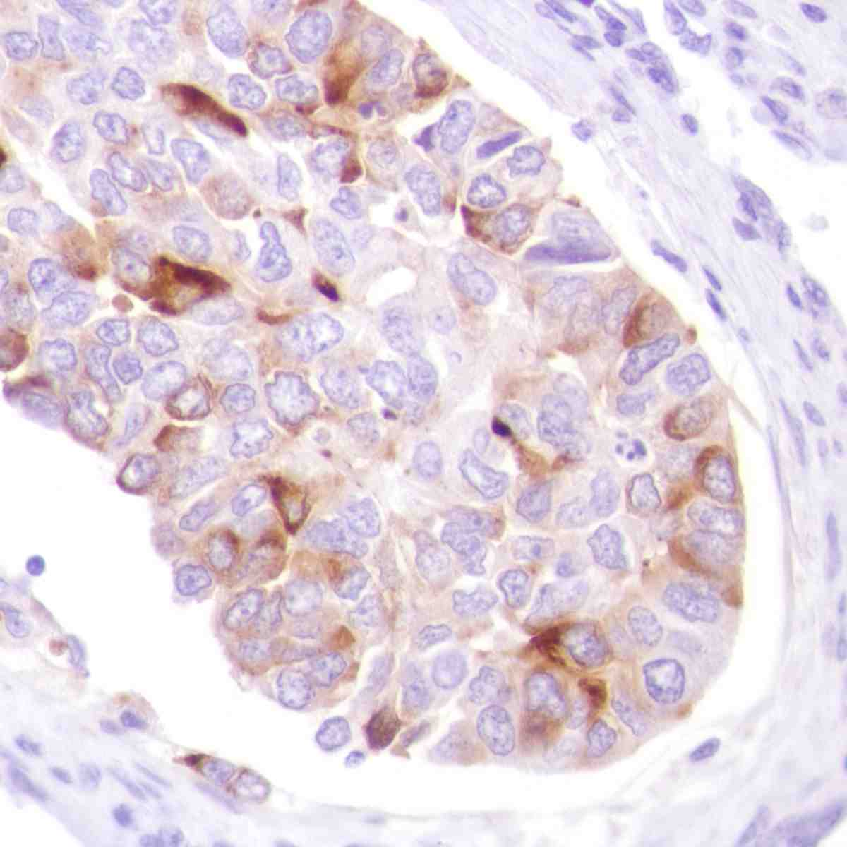 Human Breast Ductal Carcinoma stained with anti-GCDFP15 antibody