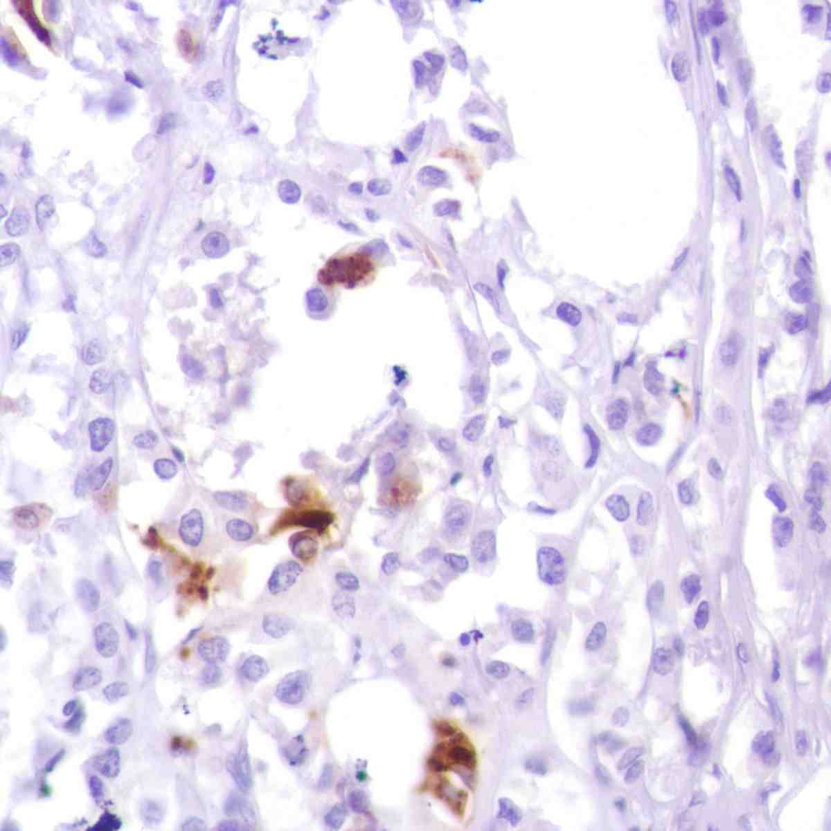 Human Breast Ductal Carcinoma stained with anti-GCDFP15 antibody2