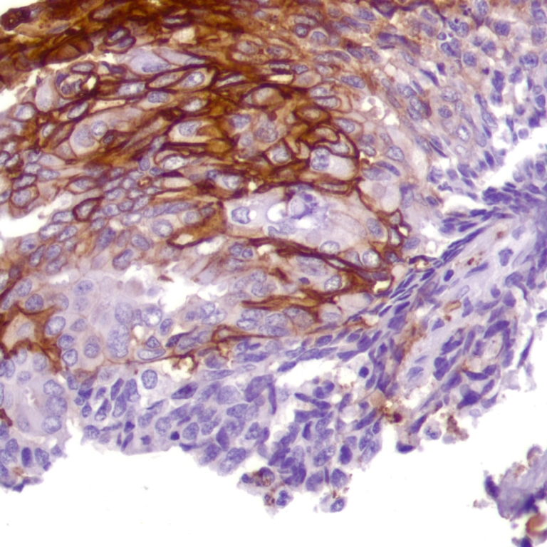 Human Endometrial Adenocarcinoma stained with anti-Glut-1 antibody