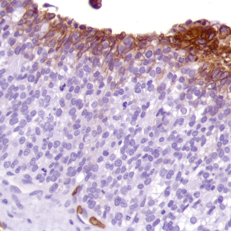 Human Ovarian Adenocarcinoma stained with anti-Glut-1 antibody