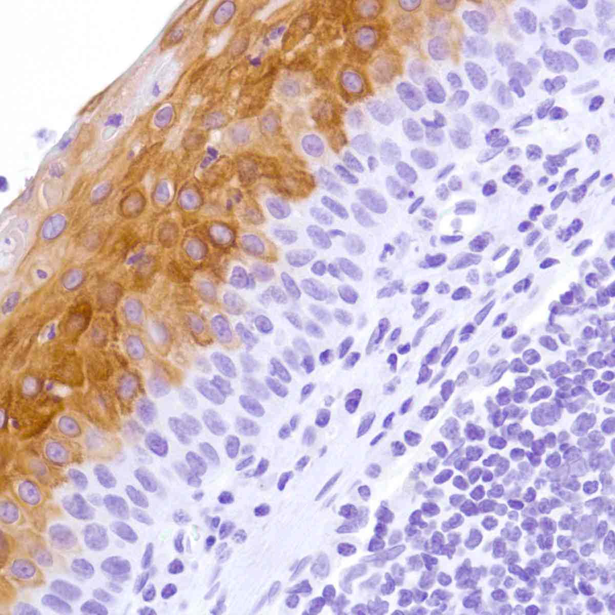 Human Tonsil stained with anti-keratin 4 antibody