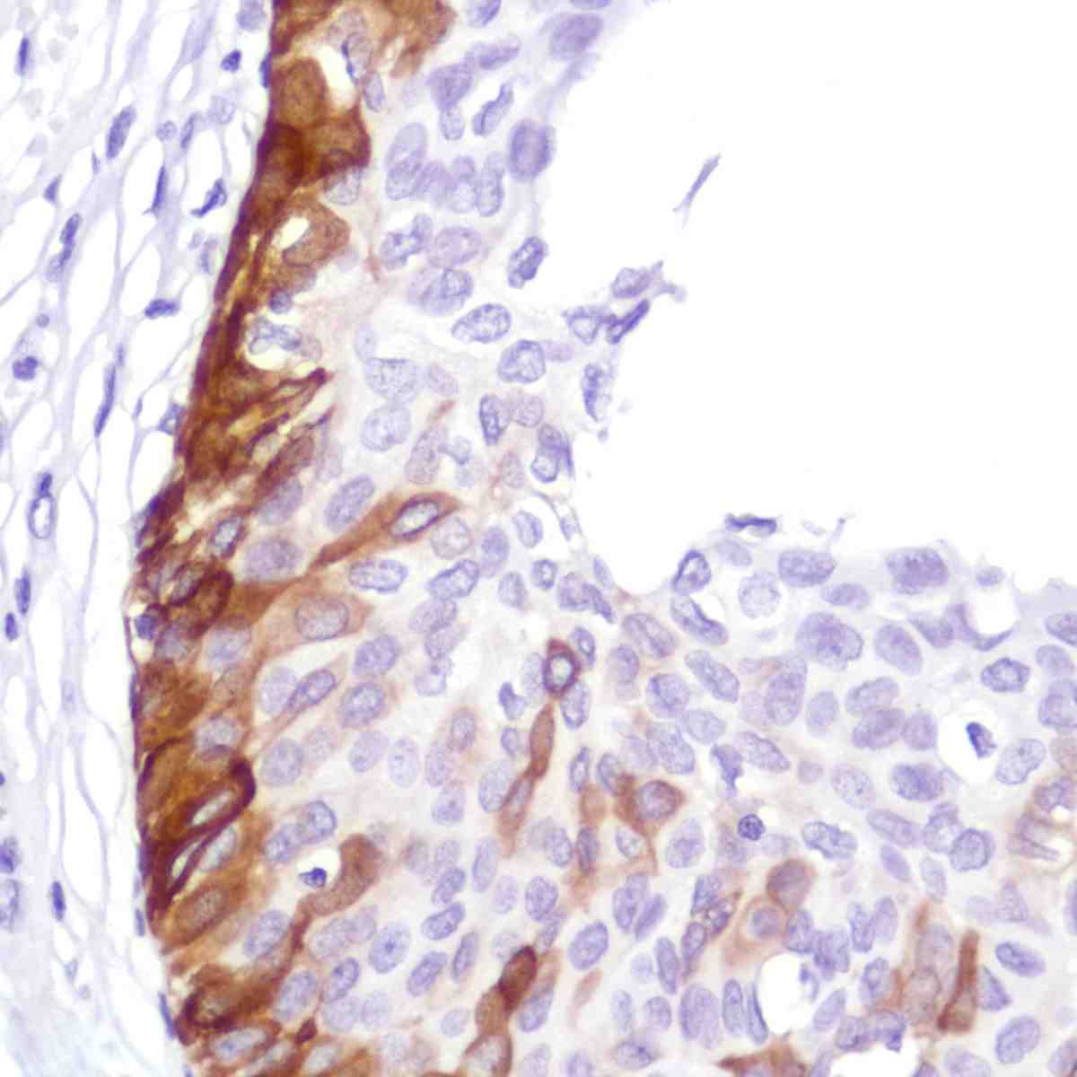 Human Bladder stained with anti-Keratin5 antibody