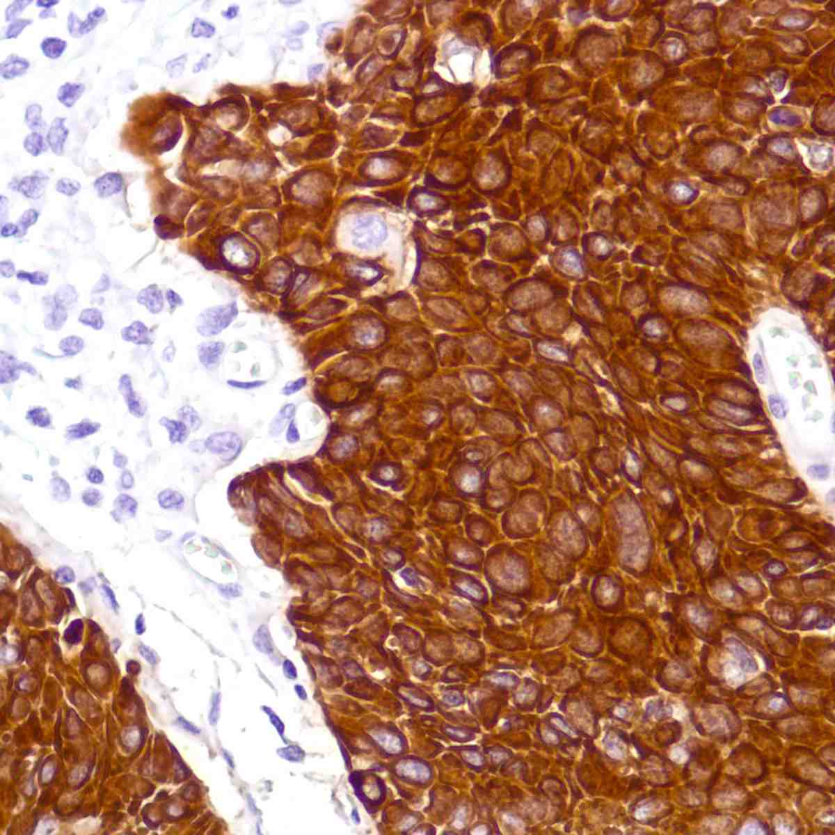 Human Cervix Squamous Cell Carcinoma stained with anti-Keratin5 antibody
