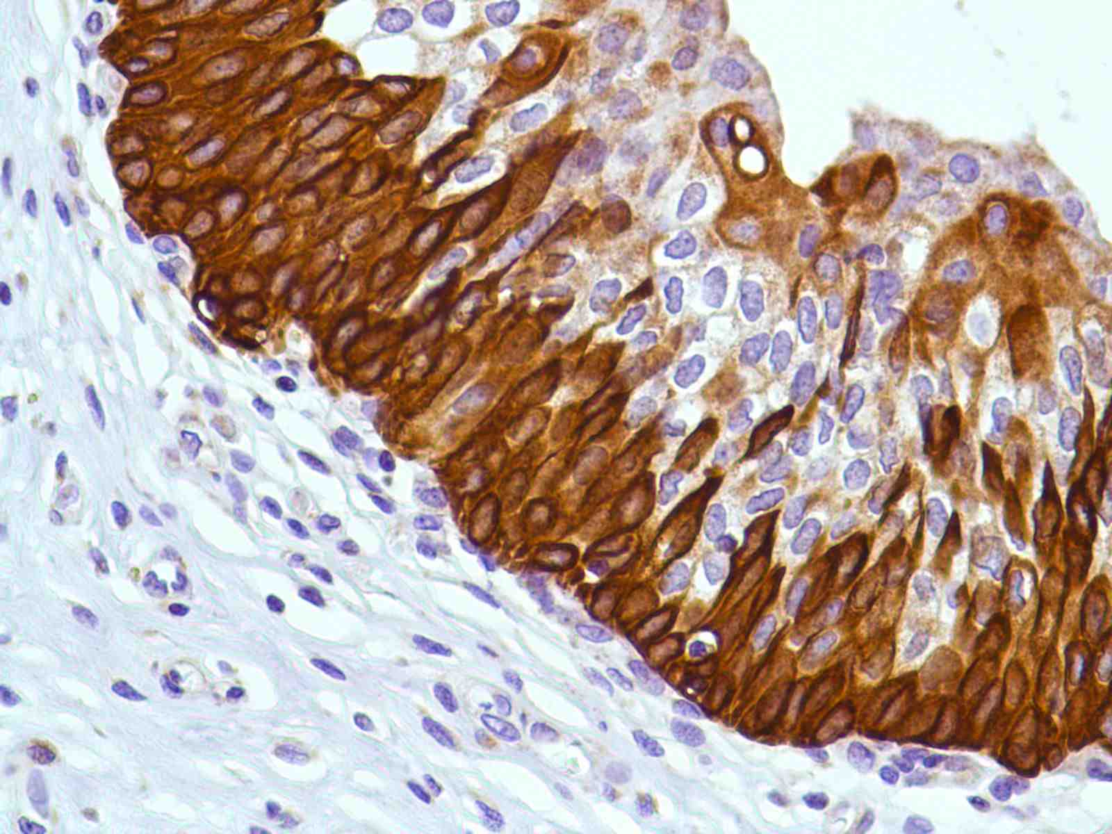 Human Bladder stained with anti-Keratin 6 antibody