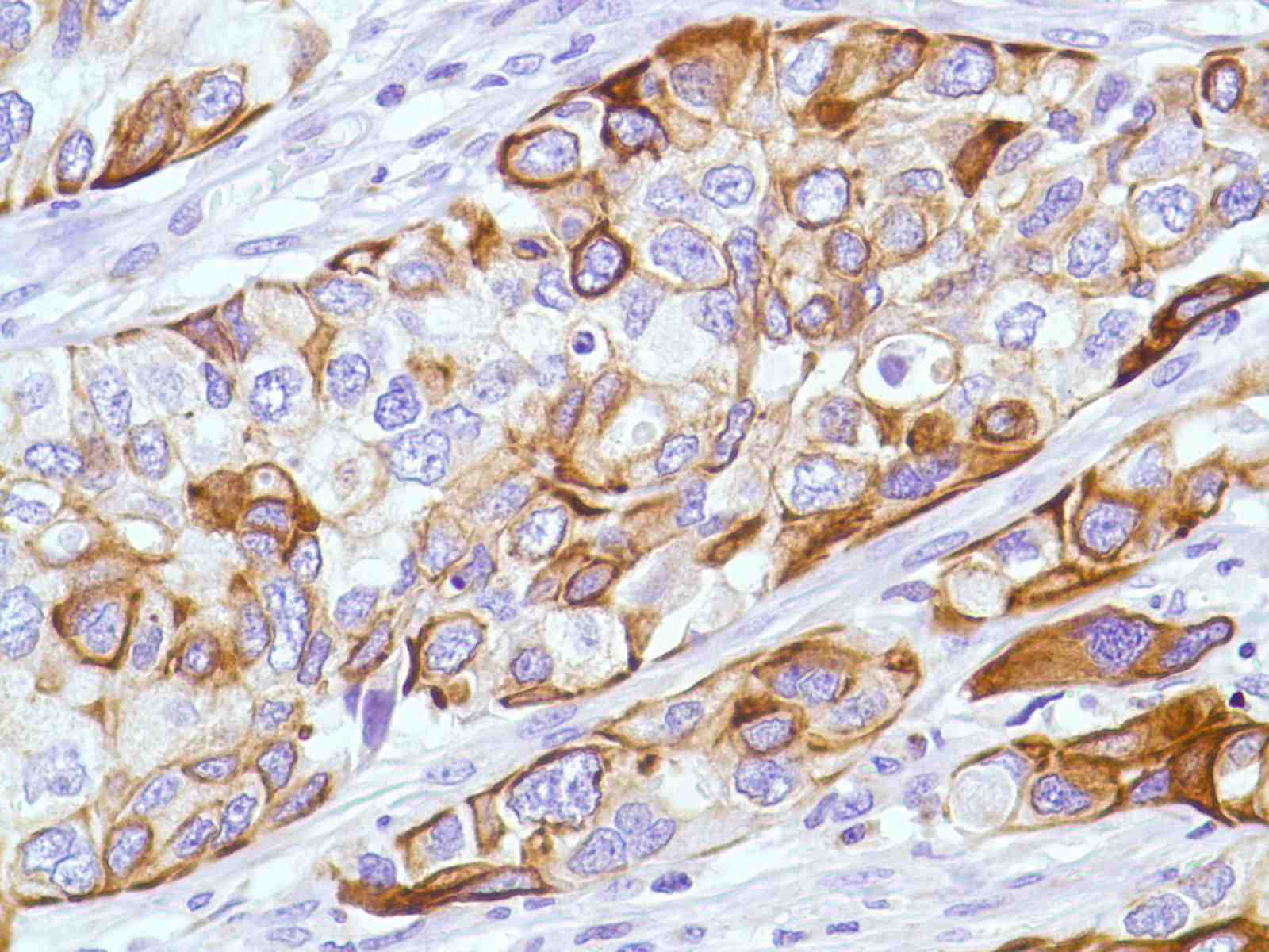 Human Bladder Transitional Cell Carcinoma stained with anti-Keratin 6 antibody