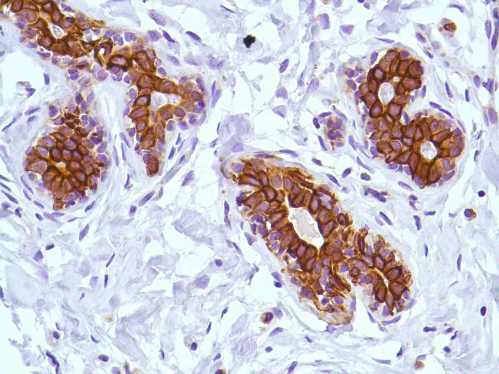 Human Breast stained with anti-Keratin 6 antibody
