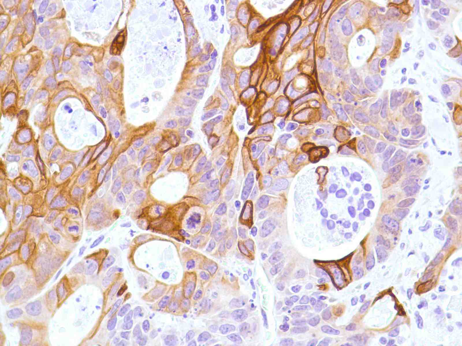 Human Colon Adenocarcinoma stained with anti-Keratin 6 antibody