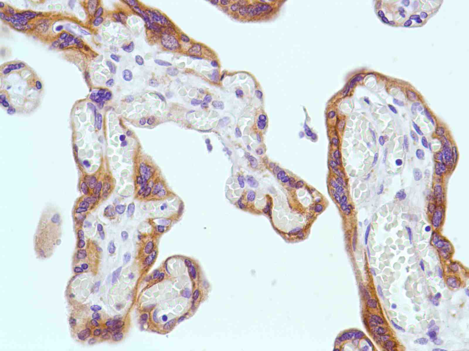 Human Placenta stained with anti-Keratin 6 antibody