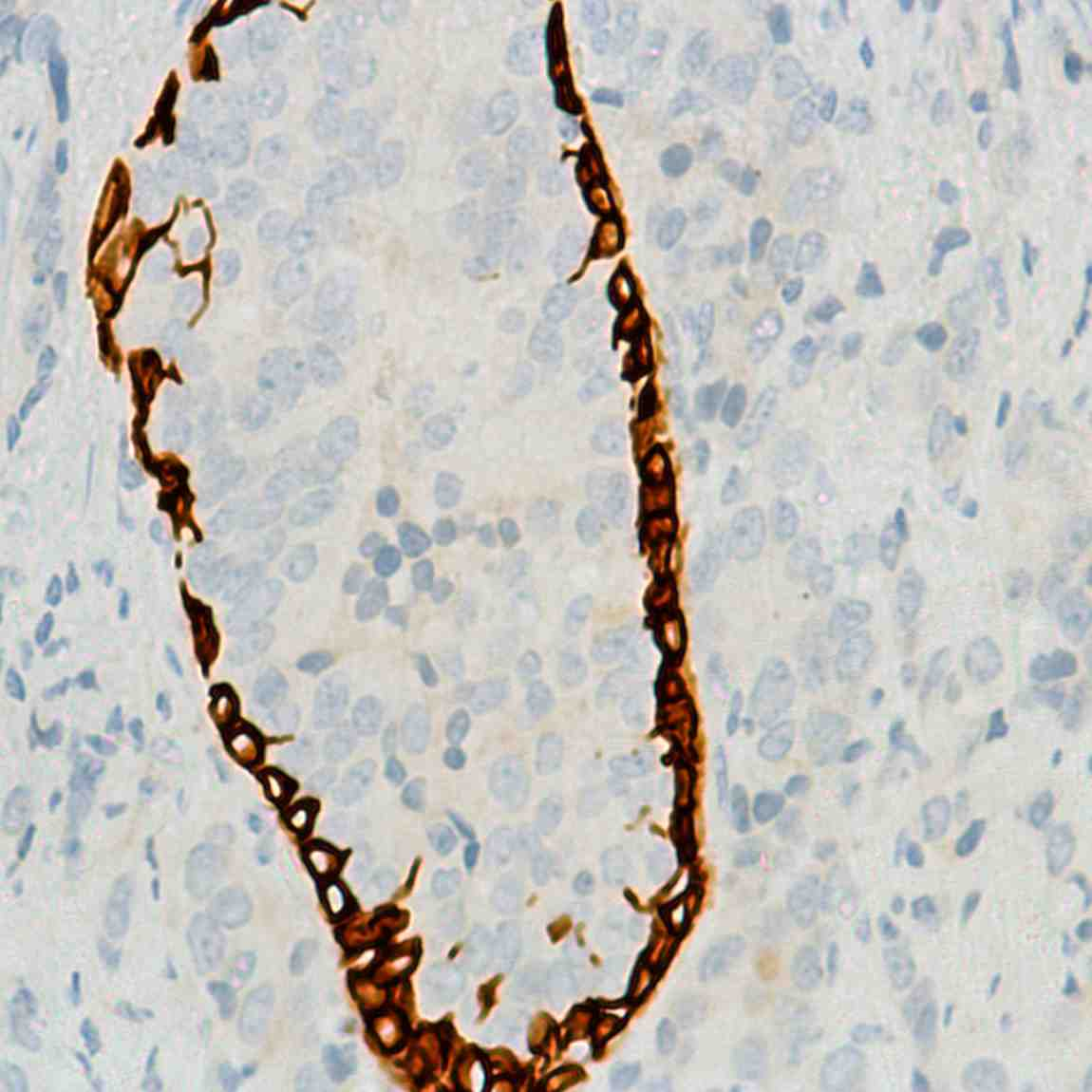 Human Prostate Carcinoma stained with anti-Keratin 6 antibody