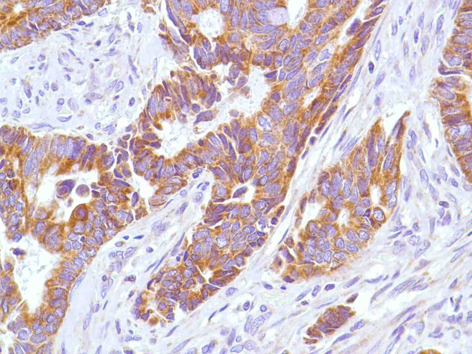 Human Rectal Adenocarcinoma stained with anti-Keratin 6 antibody