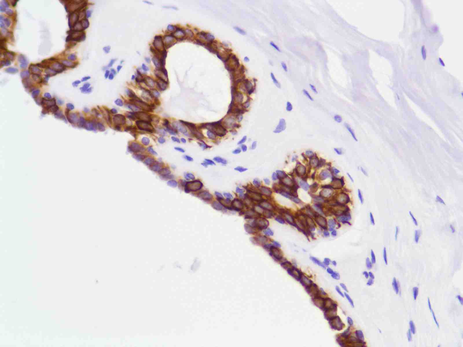 Human Breast stained with anti-Keratin 8 antibody