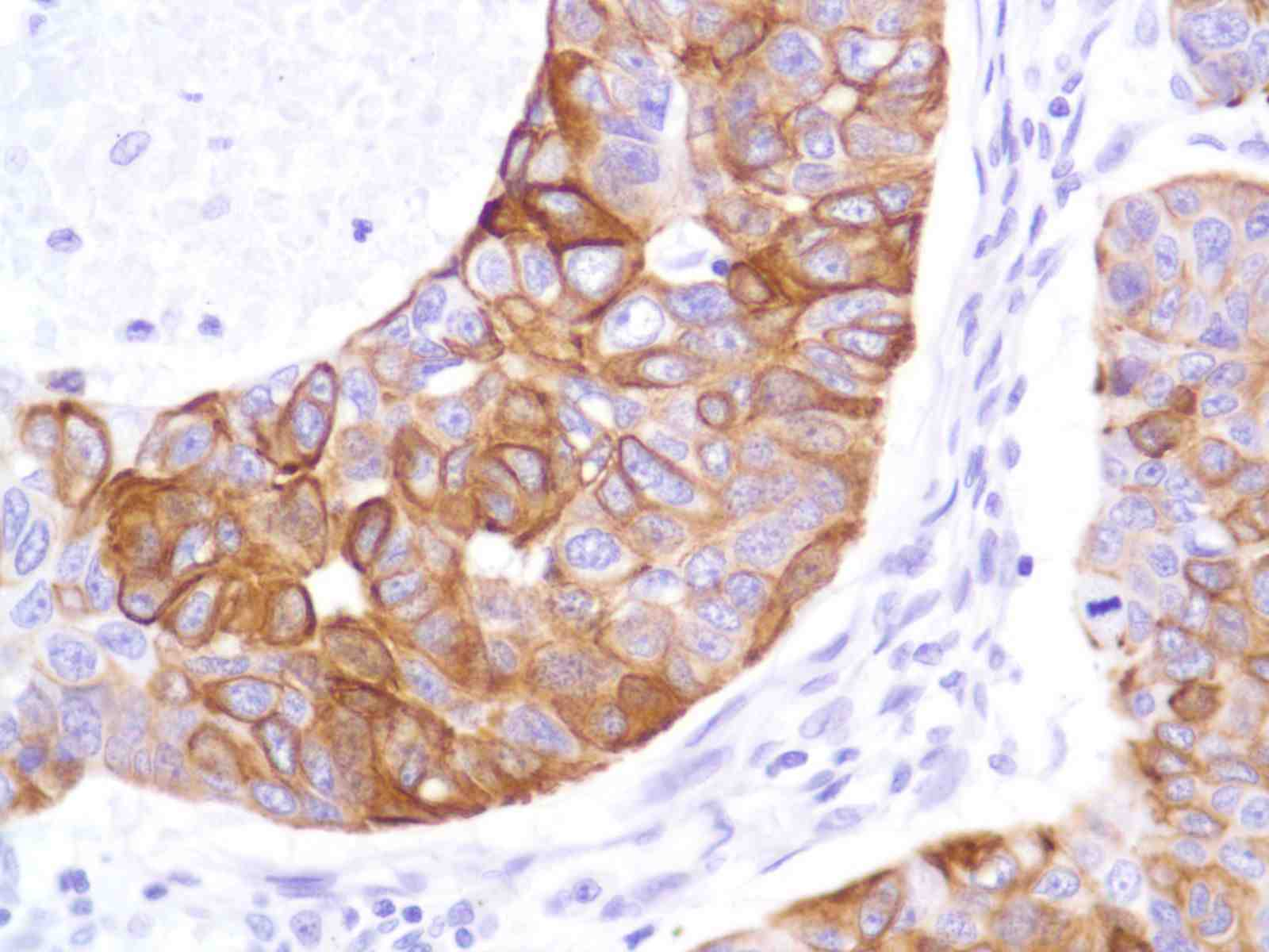 Human Lung Squamous Cell Carcinoma stained with anti-Keratin 8 antibody