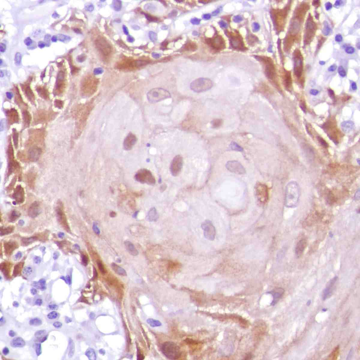 Human Skin Squamous Cell Carcinoma stained with anti-MAGE-A1 antibody