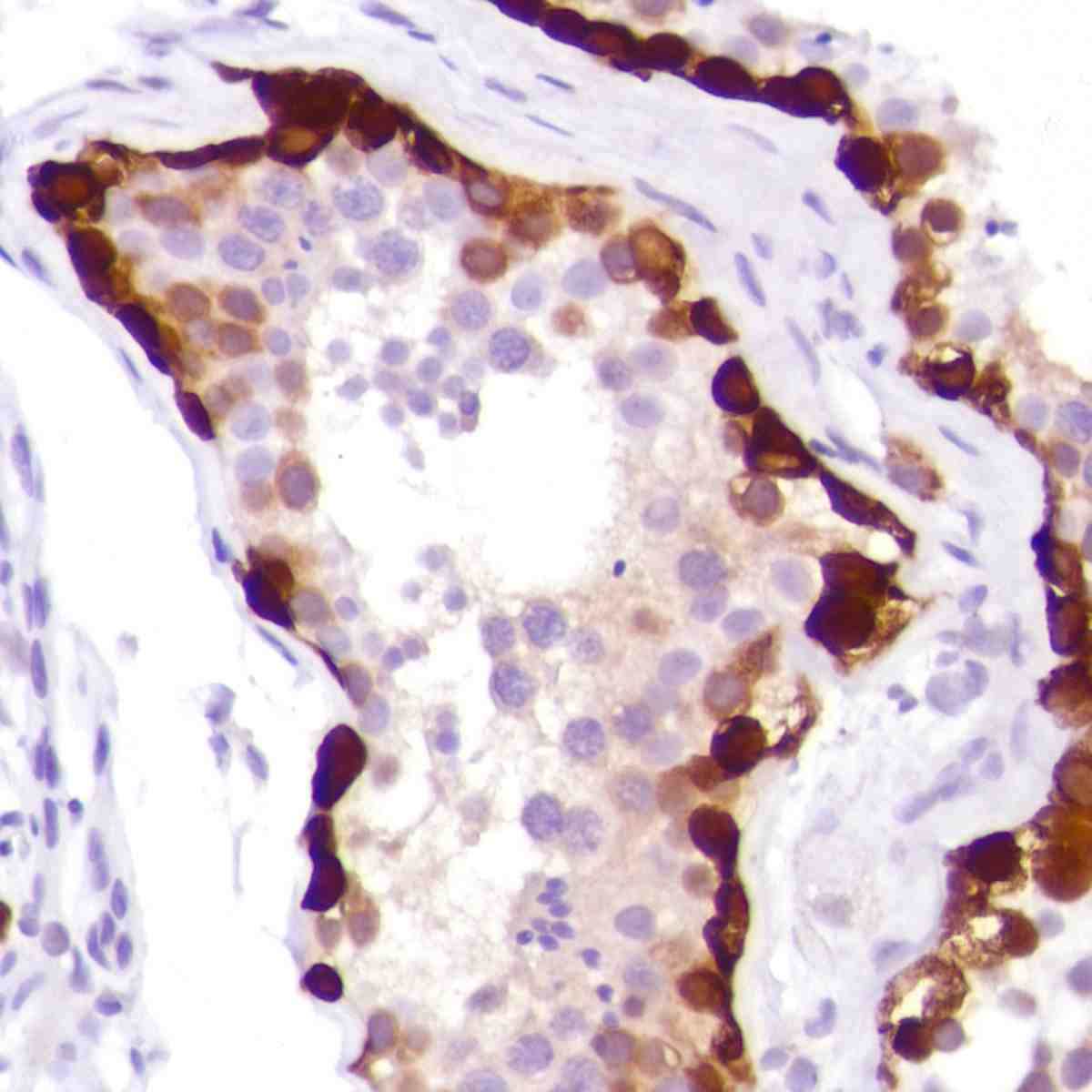 Human Testis stained with anti-MAGE-A1 antibody
