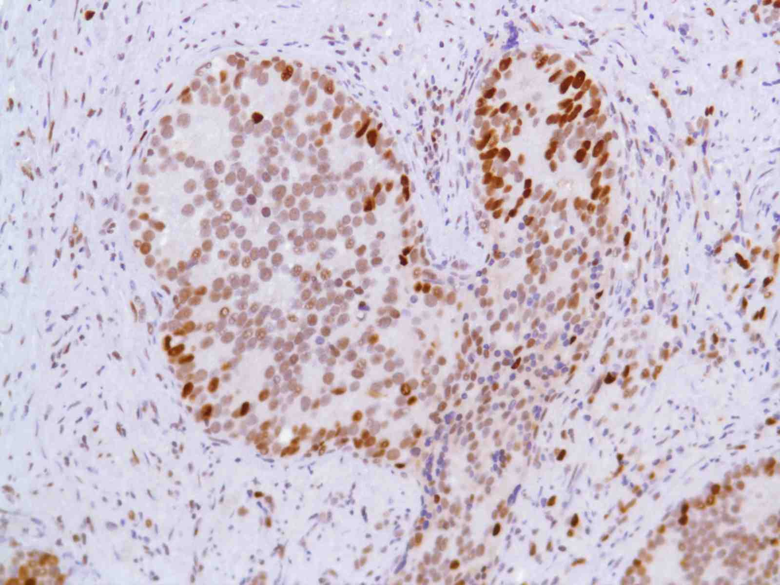 Human Prostate Adenocarcinoma stained with anti-MCM2 antibody
