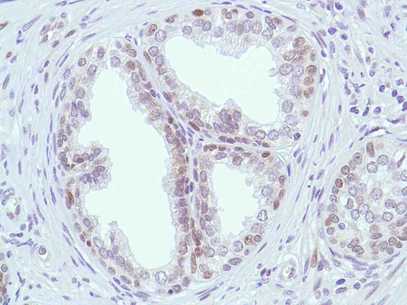 Human Prostate stained with anti-MSH2 antibody