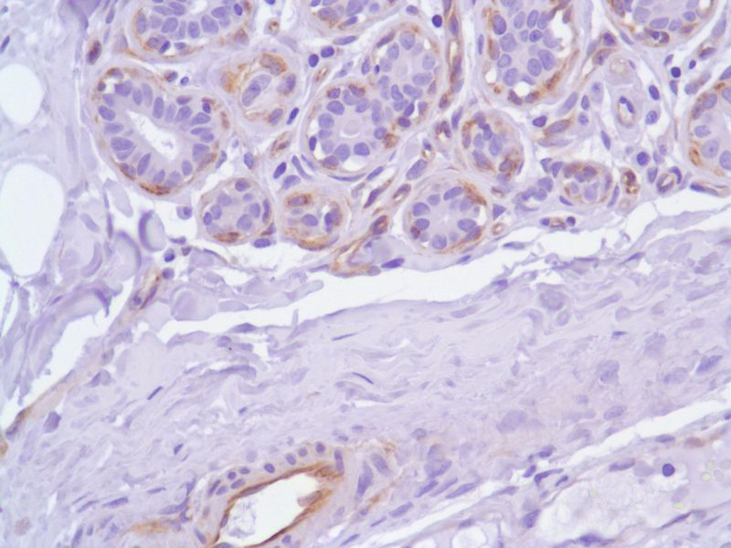 Human Breast stained with anti-Nestin antibody