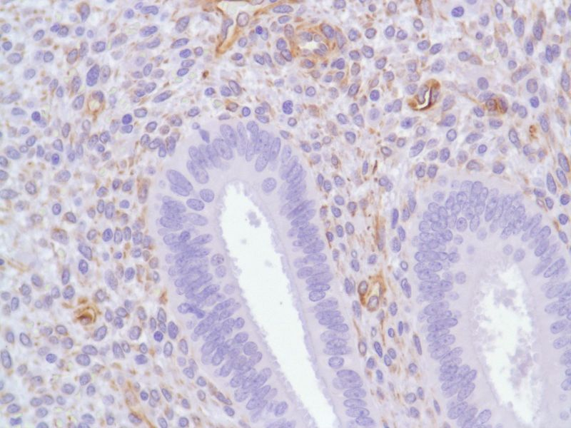 Human Endometrium stained with anti-Nestin antibody