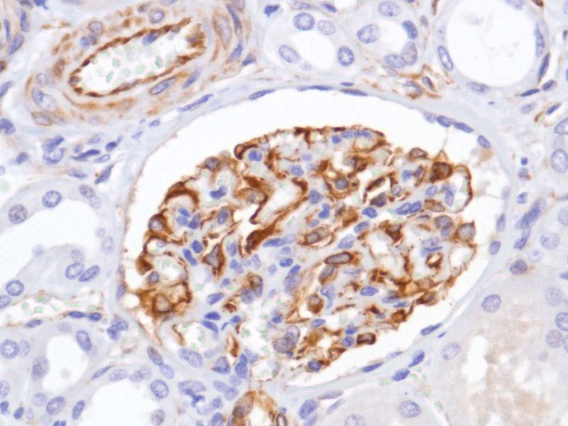 Human Kidney stained with anti-Nestin antibody