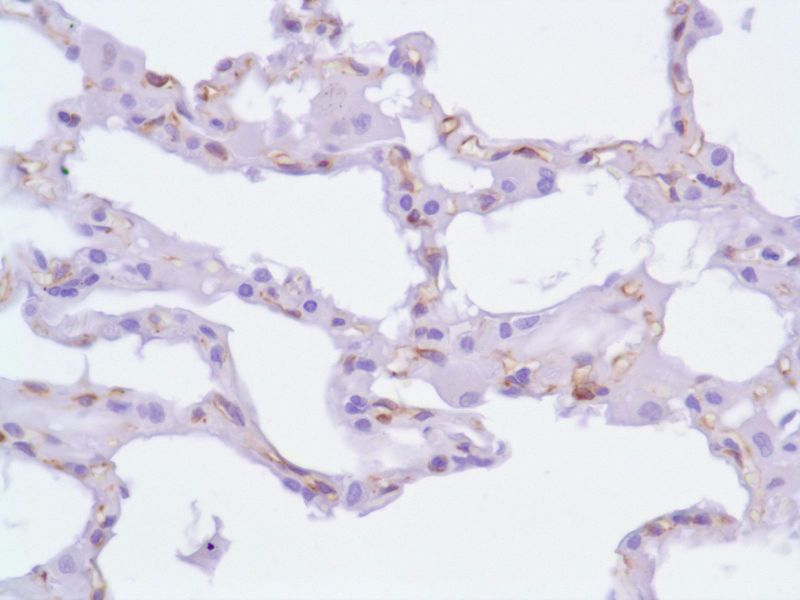 Human Lung stained with anti-Nestin antibody