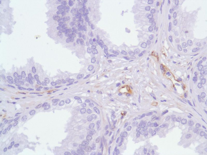 Human Prostate stained with anti-Nestin antibody