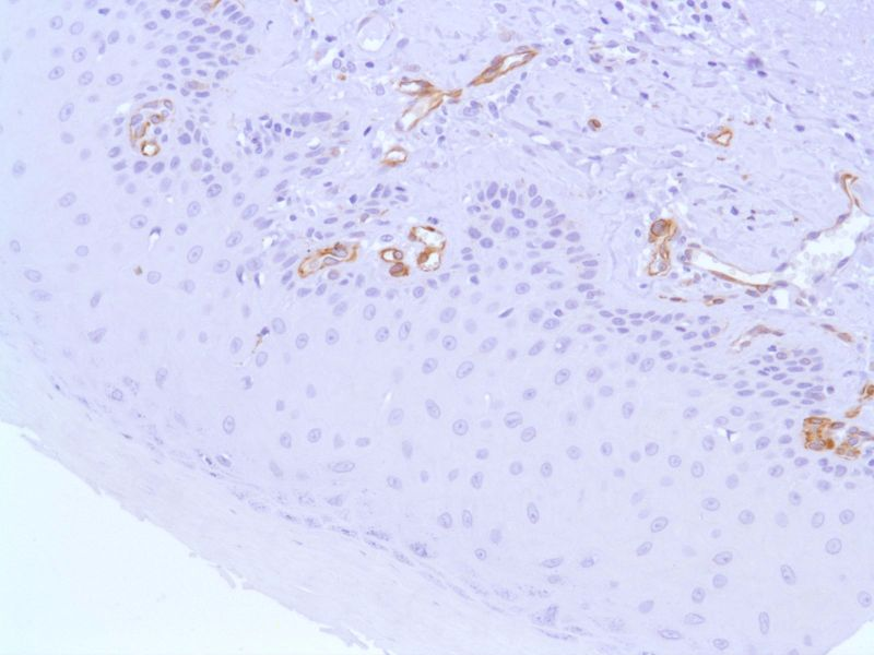 Human Skin stained with anti-Nestin antibody