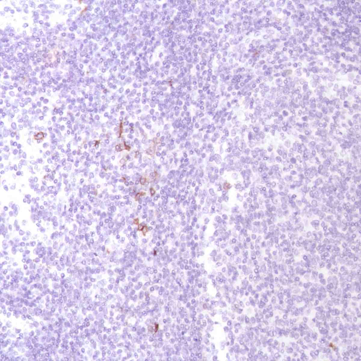 Human Tonsil stained with anti-OX40 (cloneSP195) antibody
