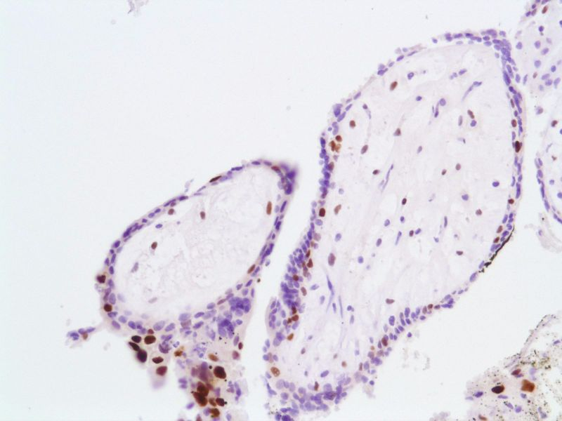 Human Partial Hydatidiform Mole stained with anti-P57 antibody