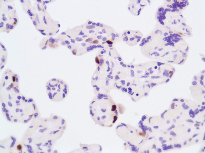 Human Placenta stained with anti-P57 antibody