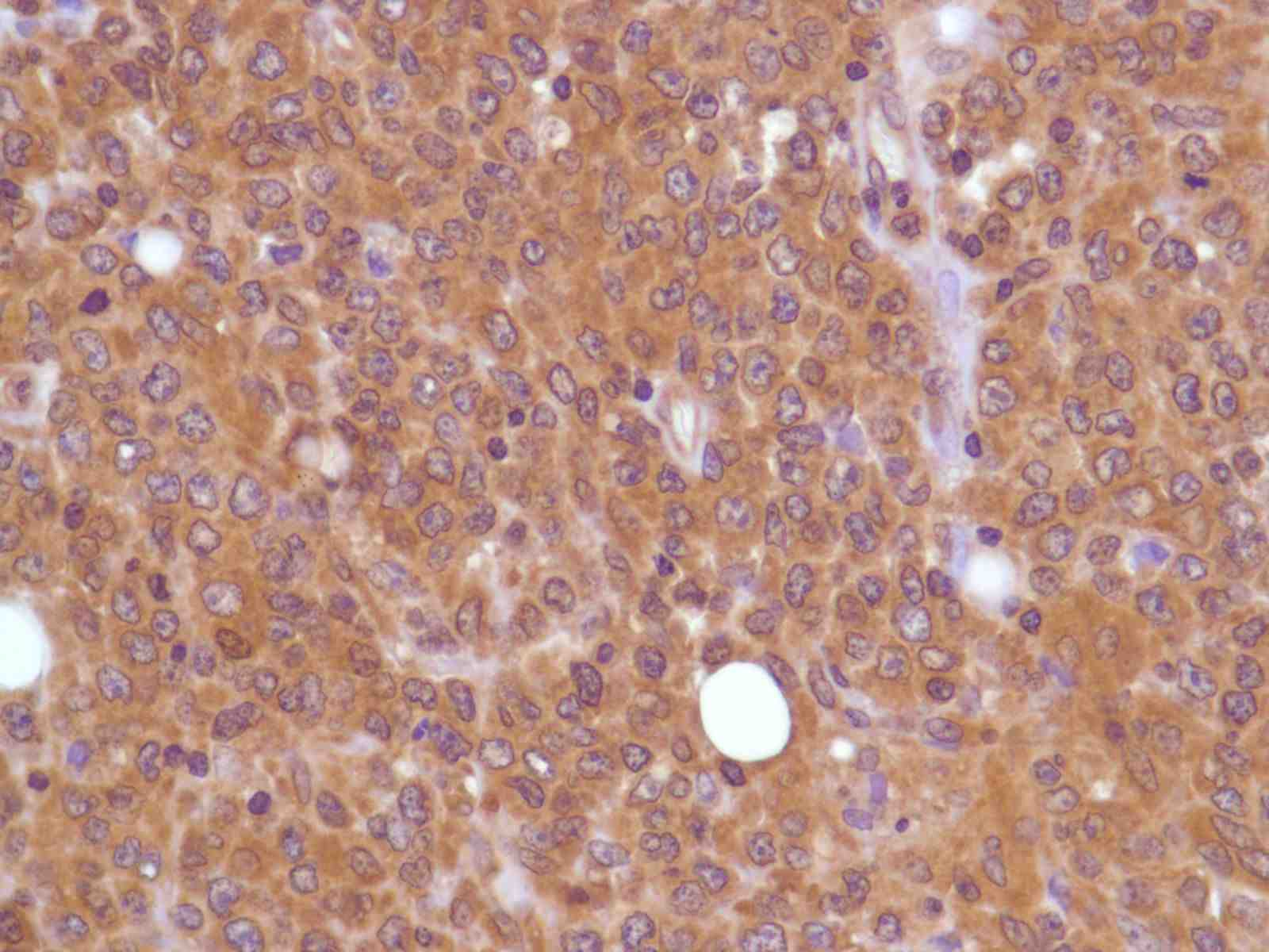 Human Lung Adenocarcinoma stained with anti-PI3K p85 antibody
