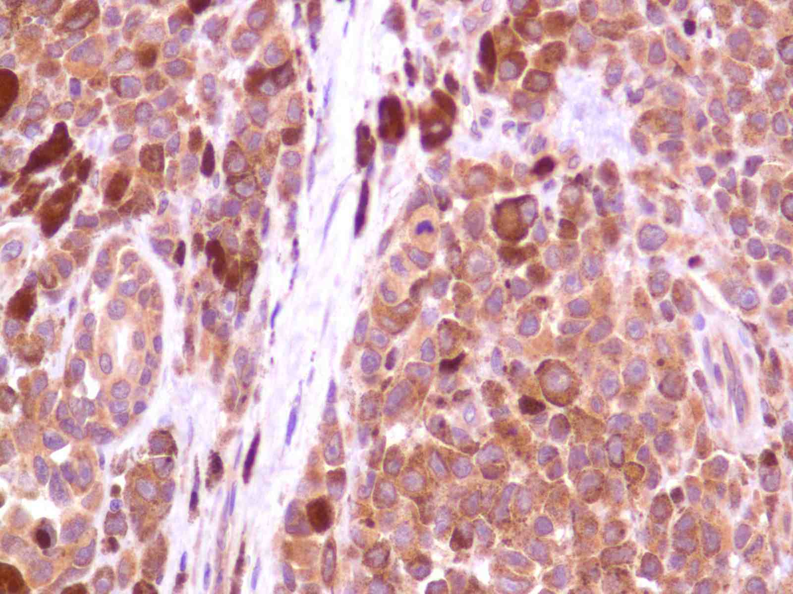 Human Melanoma stained with anti-PI3K p85 antibody