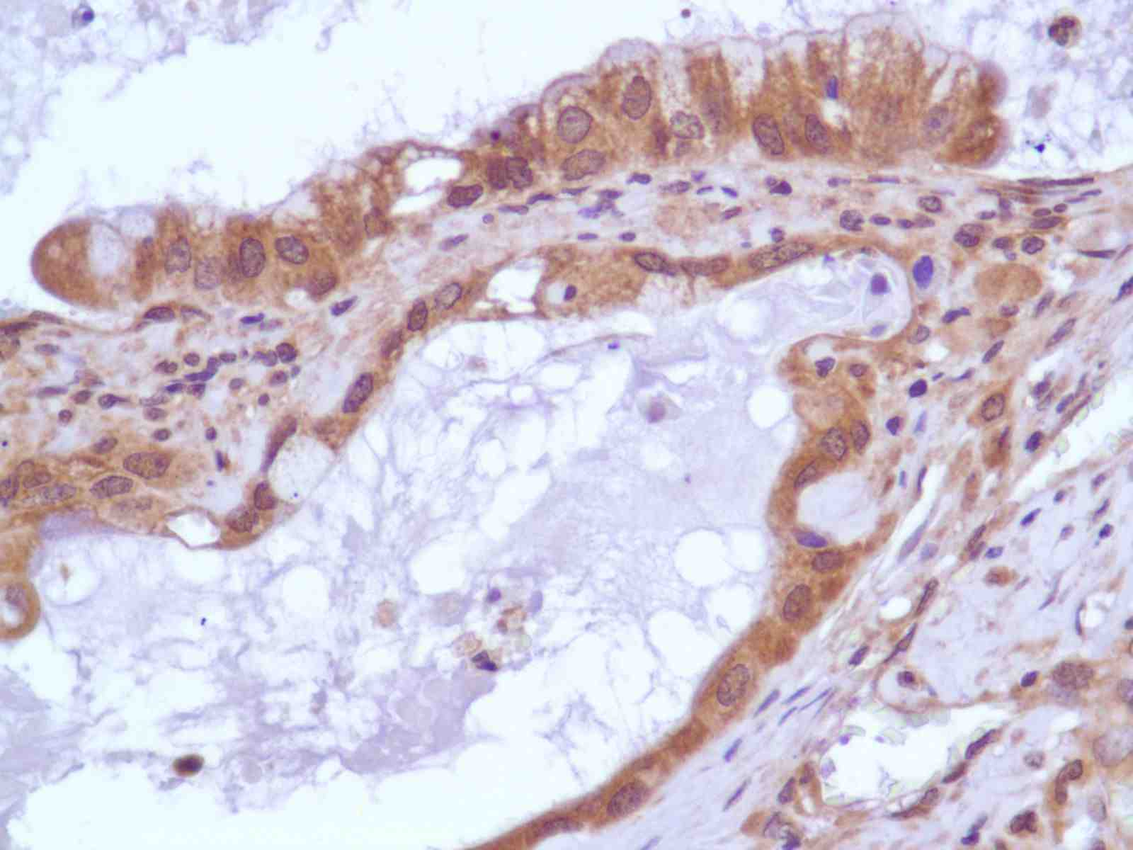 Human Pancreatic Adenocarcinoma stained with anti-PI3K p85 antibody