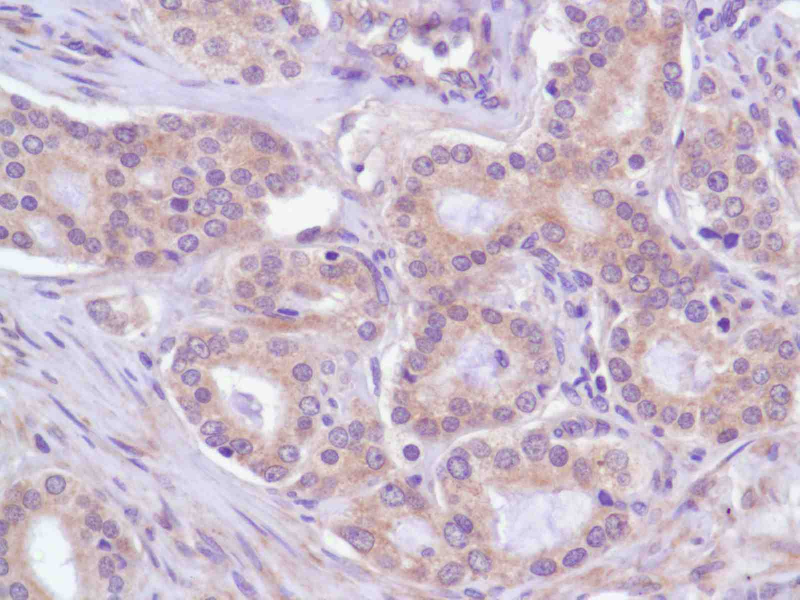 Human Prostate Adenocarcinoma stained with anti-PI3K p85 antibody